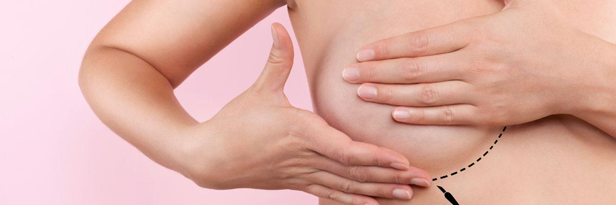 Cirugía mama